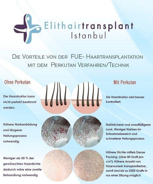 Perkutan Technik Haartransplantation bei Dr. Balwi