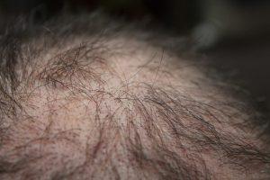 Welcher Haarausfall Doktor ist der beste?