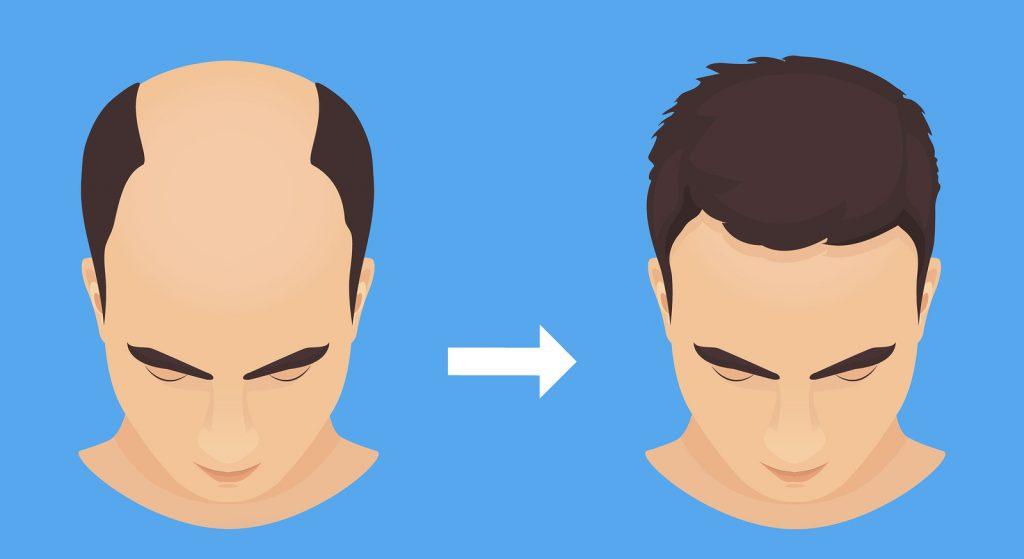 Unsere Haartransplantation Empfehlung und nützliche Tipps