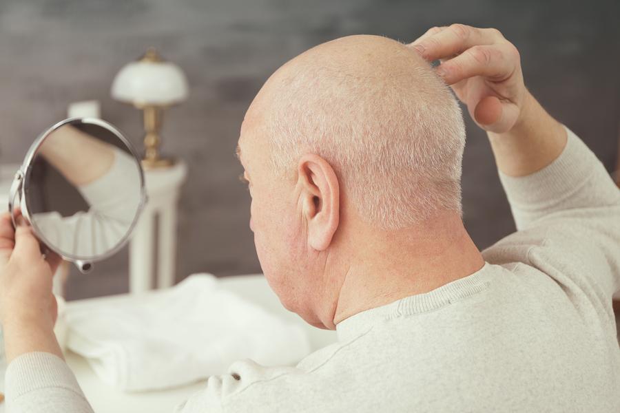 Haartransplantation Spenderbereich – auf die Pflege kommt es an