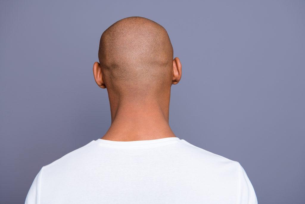 Haartransplantation Narben – abhängig von der Methode