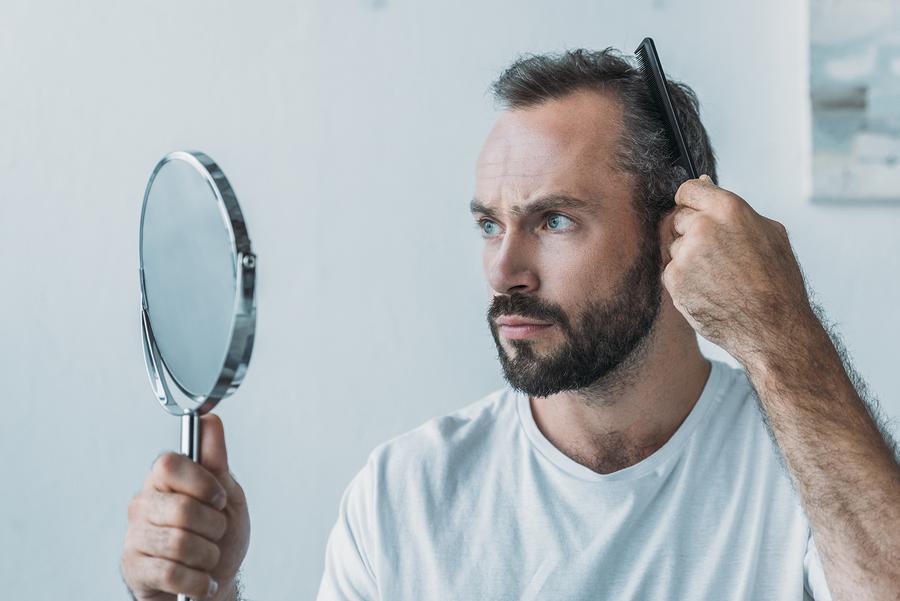Bei einer fehlgeschlagenen Haartransplantation nicht verzweifeln