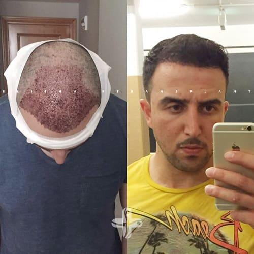 Haartransplantation Türkei Vorher Nachher