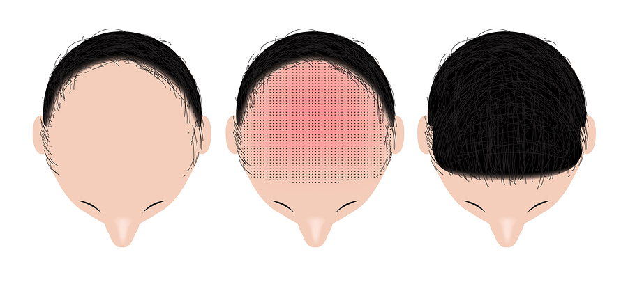 Krusten nach der Haartransplantation als Zeichen der Heilung