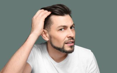 Einseitiger Haarausfall – ein seltenes Phänomen