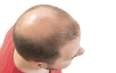 Seborrhoische Dermatitis mit Haarausfall