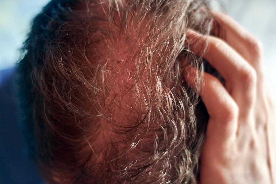 Rötung nach der Haartransplantation