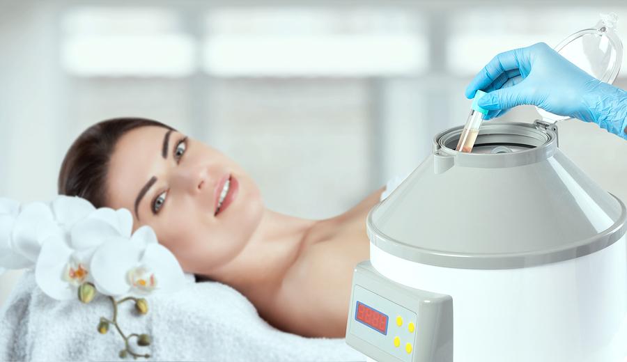 Plasmabehandlung bei Haarausfall
