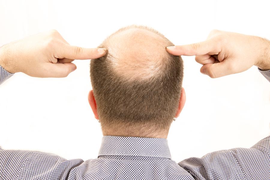 Selbstbewusstsein leidet durch den Haarausfall
