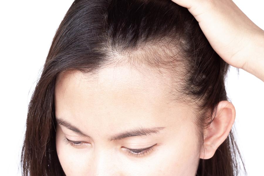 Anhaltender Haarausfall - Ursachenforschung und Behandlungsmöglichkeiten