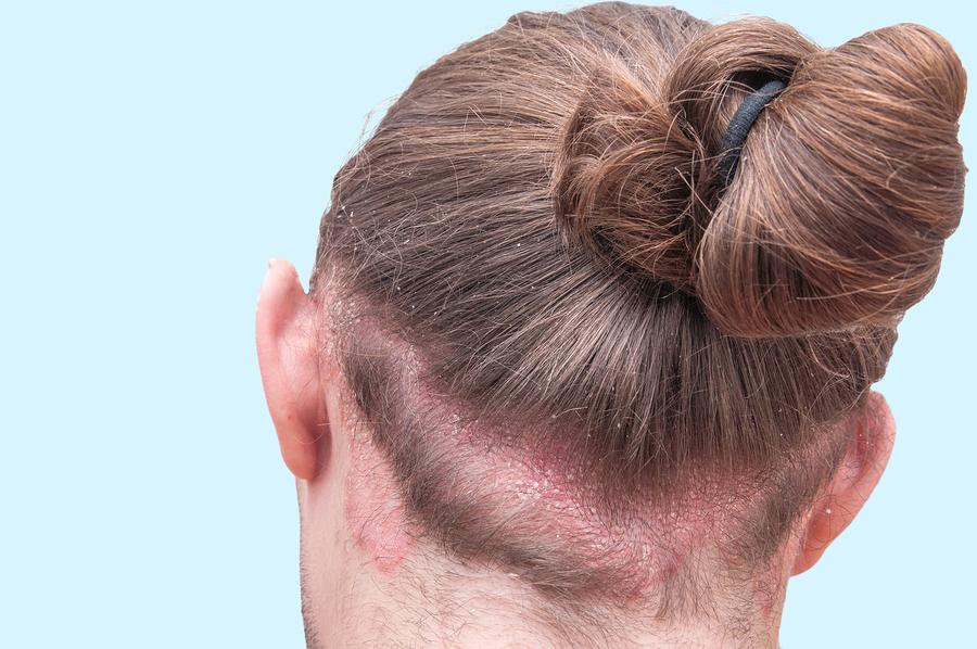 Entzündungen nach der Haartransplantation