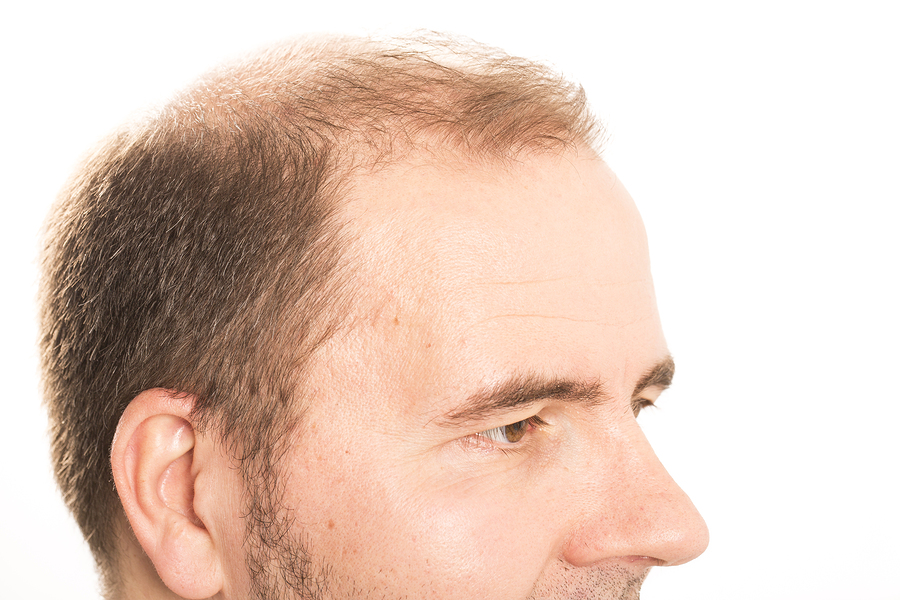 Rezeptfreie Mittel gegen Haarausfall