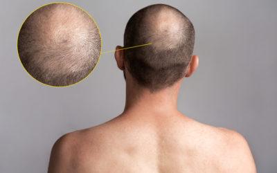 Shock Loss Haarausfall bei Haartransplantationen und die Ursachen