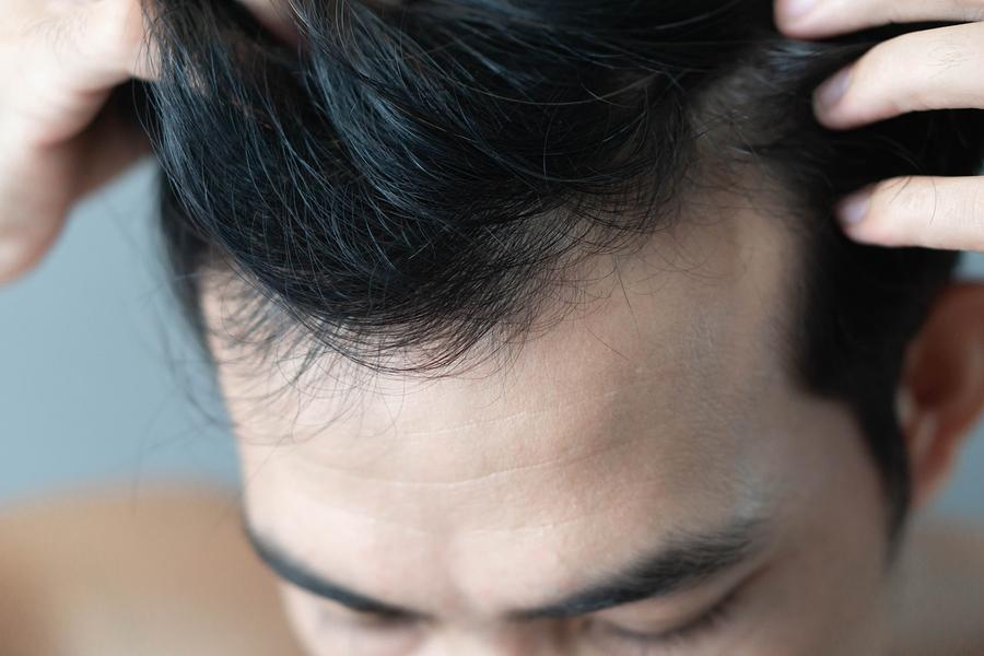 Zweite Haartransplantation zur Verdichtung