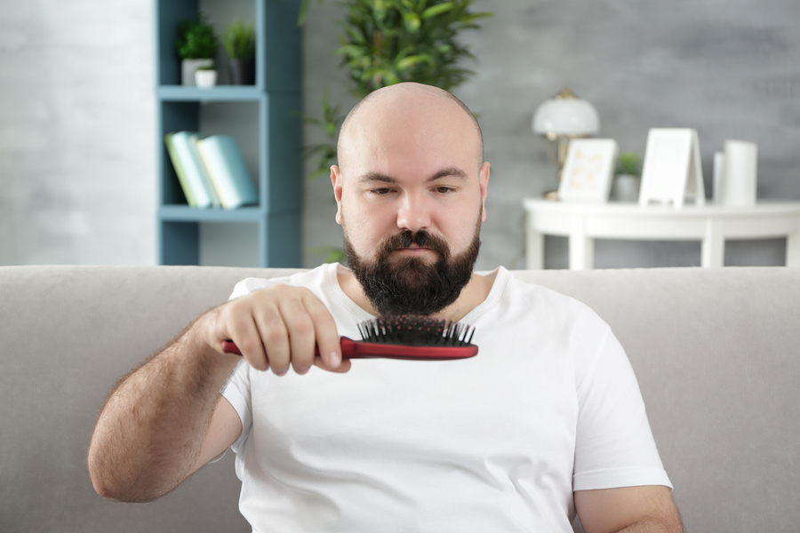 Glatzenbildung – Der richtige Umgang mit Haarschwund