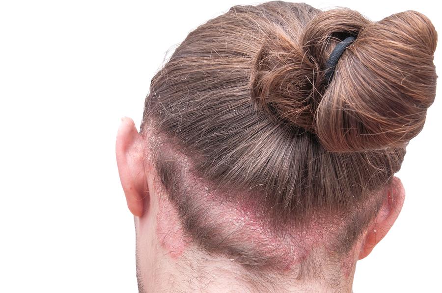 Haarausfall bei Neurodermitis