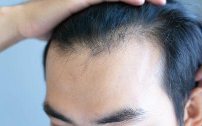 Haarausfall verdecken