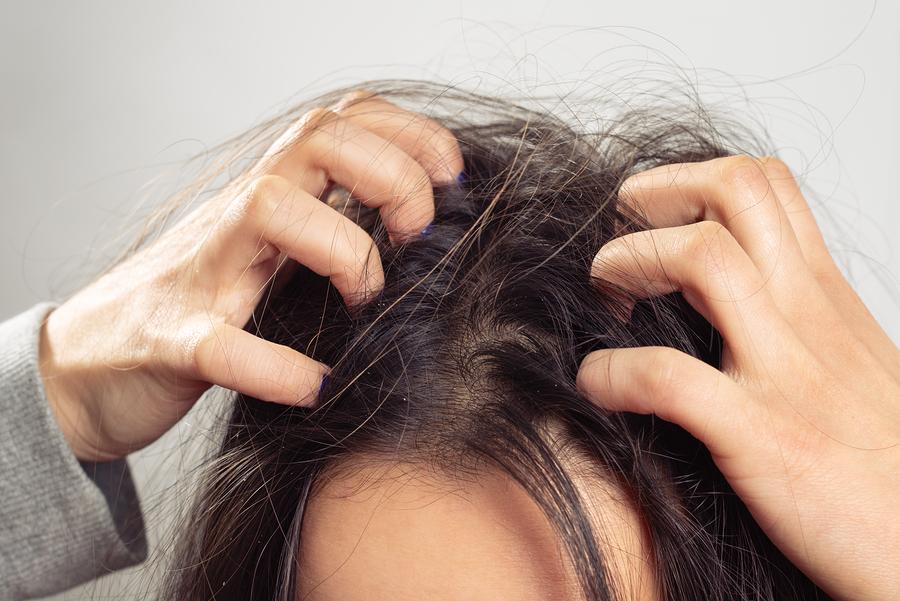"""Haarausfall am Haaransatz: Geheimratsecken sind nicht """"typisch männlich"""""""