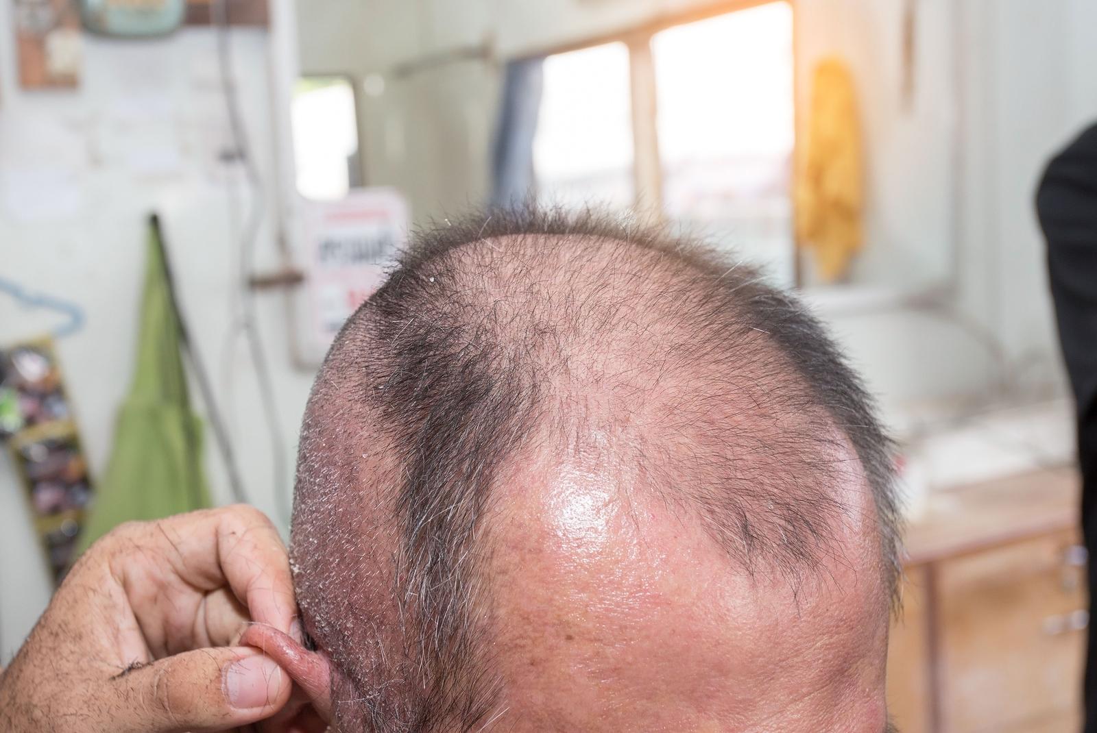 Haarausfall durch Folliculitis Decalvans behandeln