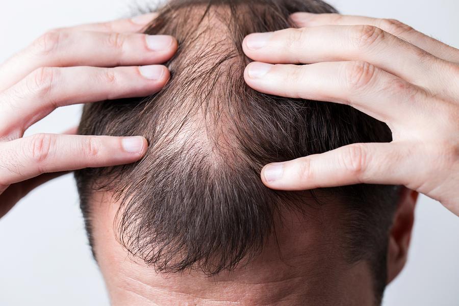 Stromreize gegen Haarausfall – Hilfe bei Kahlköpfigkeit