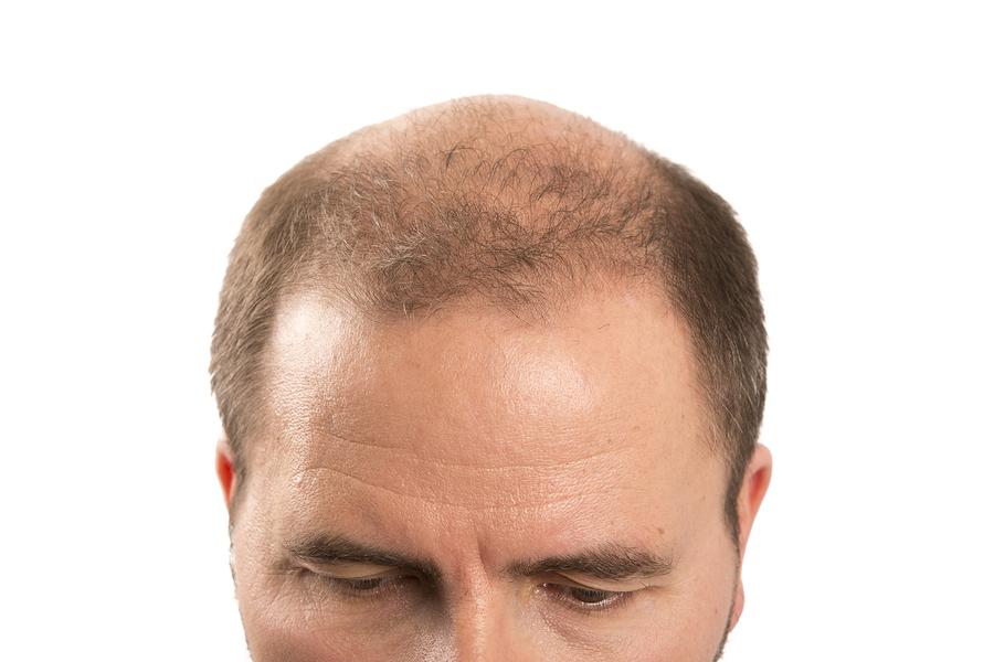 Shock Loss nach der Haartransplantation