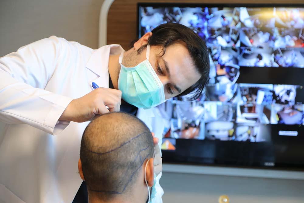 Dr. Balwi zeichnet die Haarlinie des Patienten ein