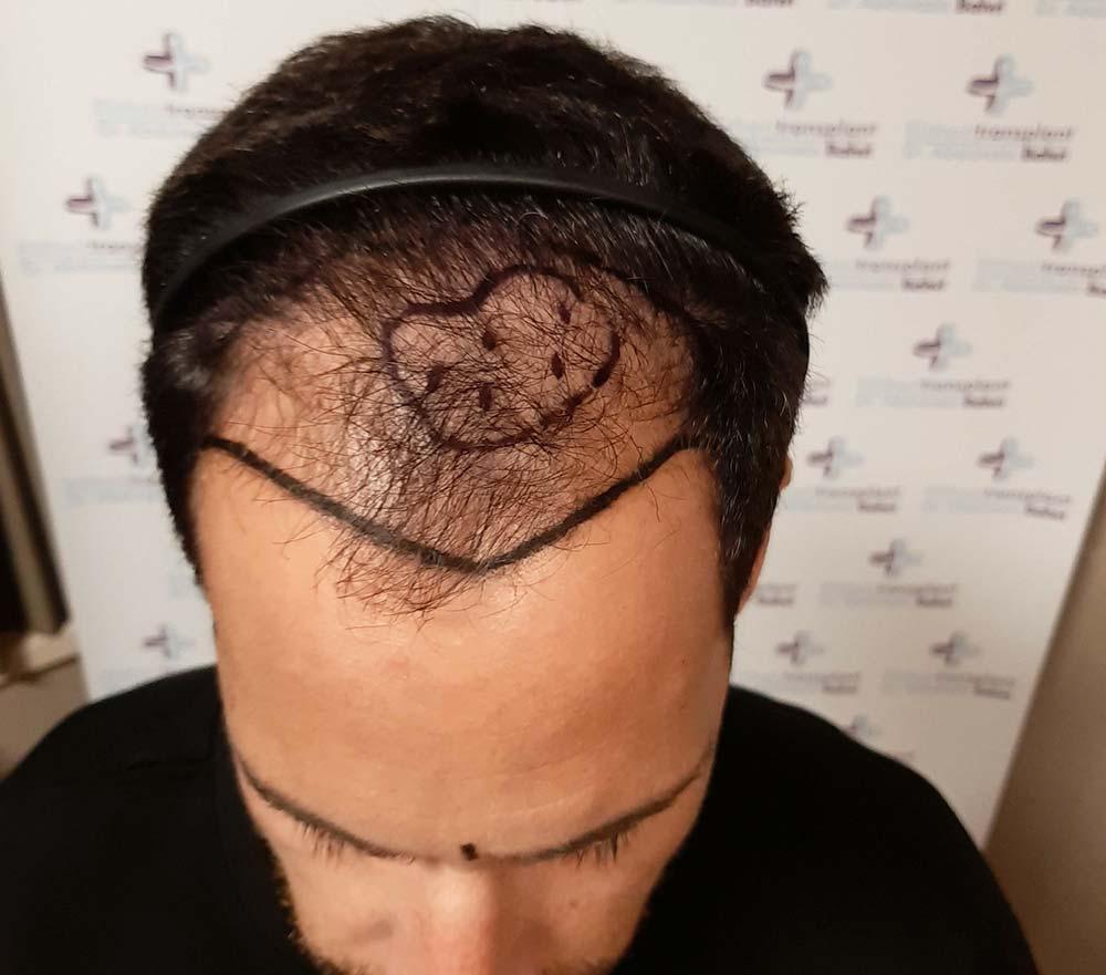 Erblich bedingter Haarausfall als Voraussetzung der Haartransplantation