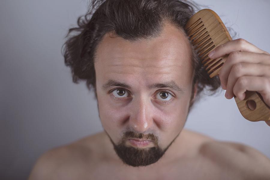 Hilfe,Geheimratsecken! Wachsendie Haare wieder?