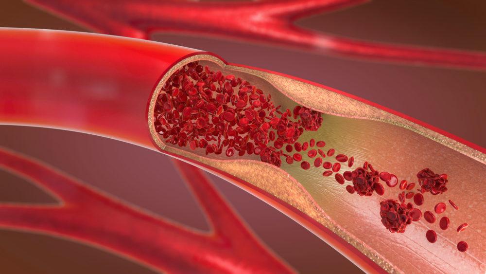 Rauchen wirkt sich negativ auf die Durchblutung aus