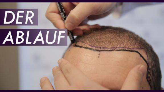 Haartransplantation Ablauf in der Türkei